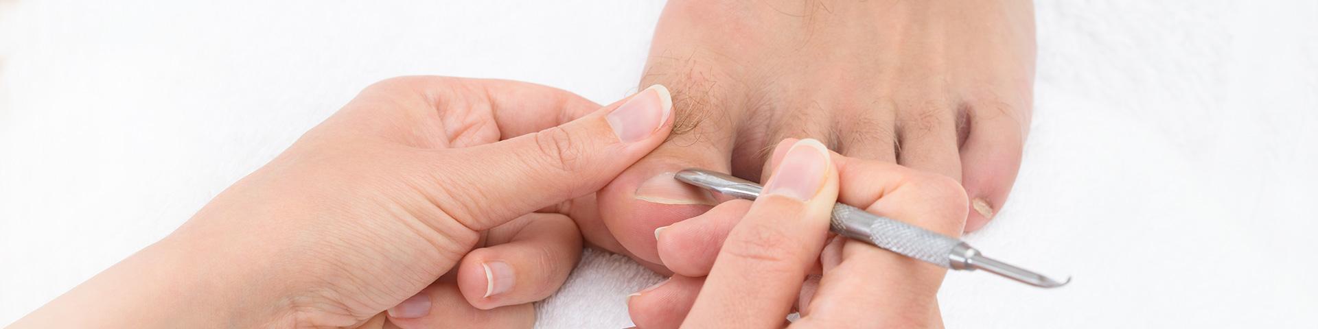 Frauenhand mit Instrument entfernt an einem Männerfuß überschüssige Haut